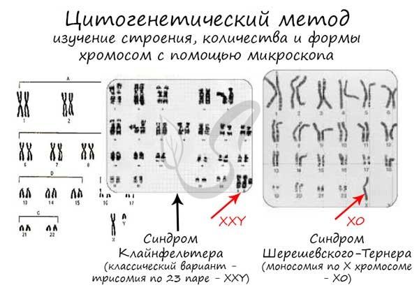 Цитогенетический метод исследования