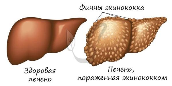 Печень с финнами эхинококка