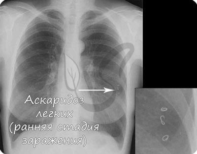 Аскаридоз легких