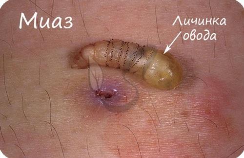 Личинка овода на коже